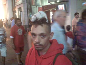 Rat on Head